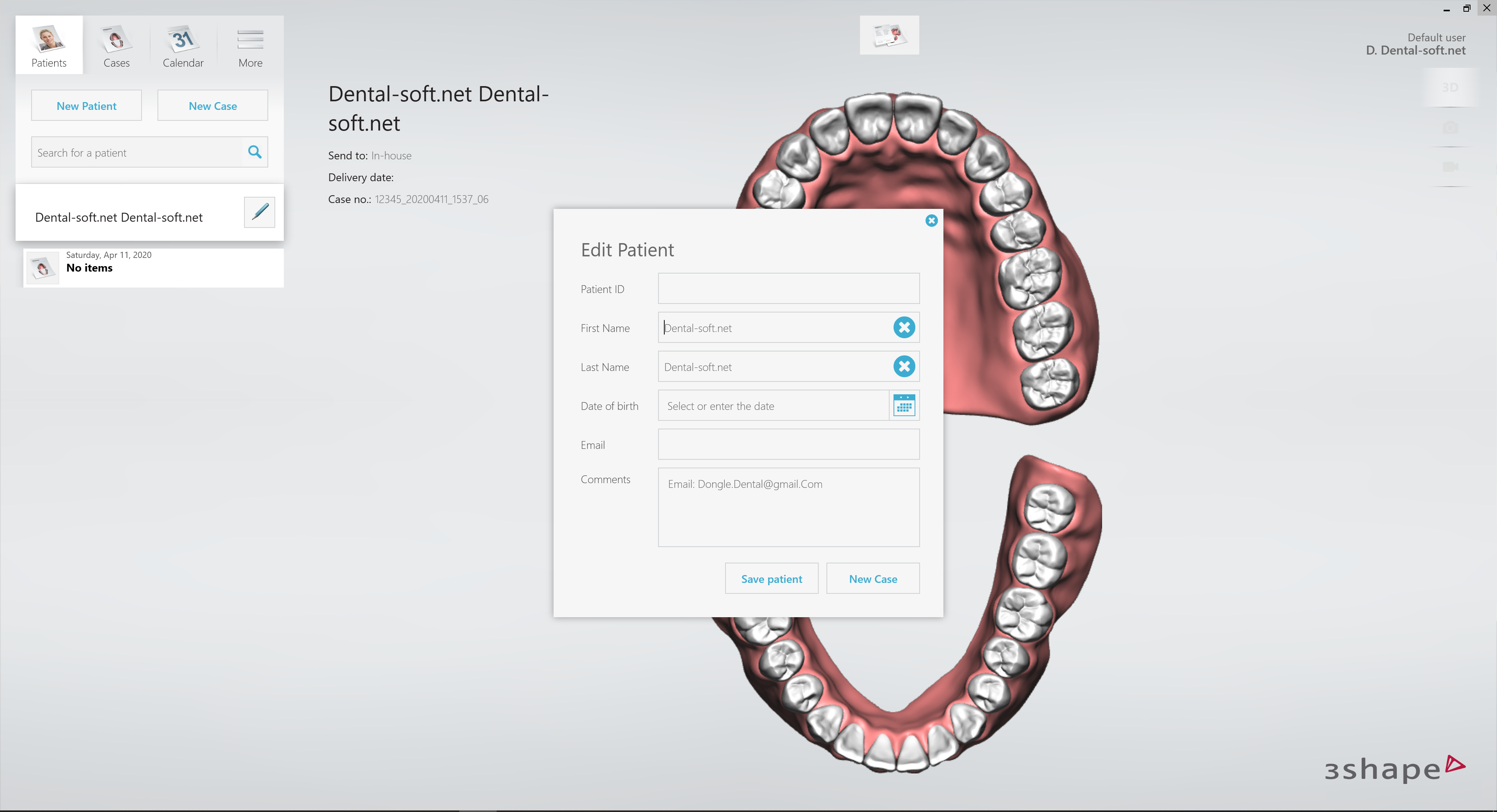 3shape Dental Designer Download Crack The Inside India Blog